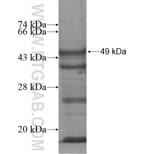 SART3 fusion protein Ag13277 SDS-PAGE