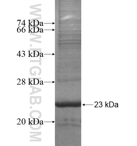 SLC22A24 fusion protein Ag15466 SDS-PAGE