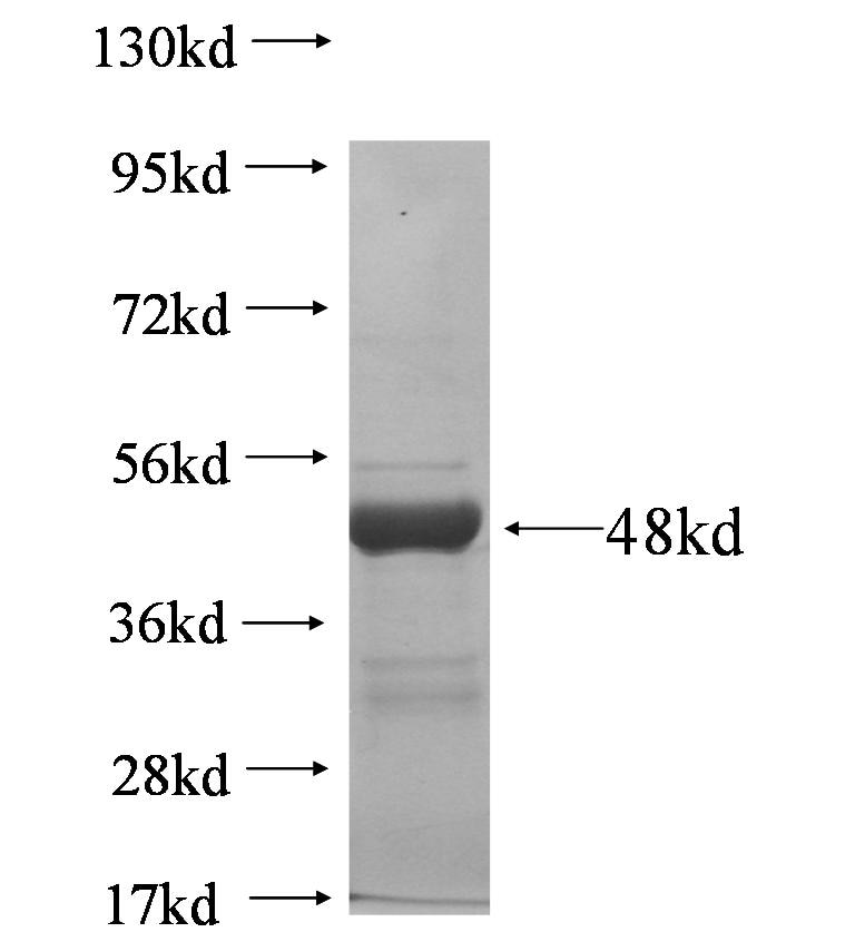 SLC25A13 fusion protein Ag5875 SDS-PAGE