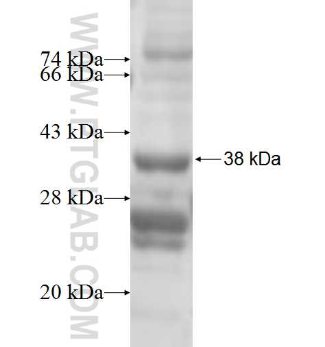 SLC25A20 fusion protein Ag6887 SDS-PAGE