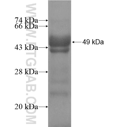 SNTB2 fusion protein Ag13504 SDS-PAGE