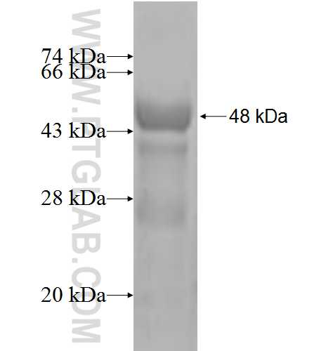 SSSCA1 fusion protein Ag2916 SDS-PAGE