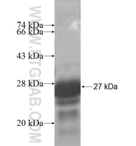 ST3GAL2 fusion protein Ag4721 SDS-PAGE