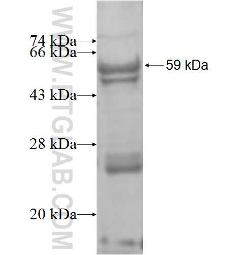 ST6GALNAC6 fusion protein Ag8475 SDS-PAGE