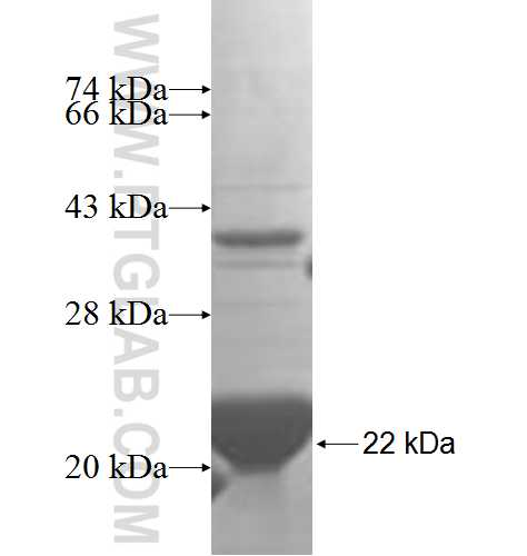 STARD4 fusion protein Ag5039 SDS-PAGE