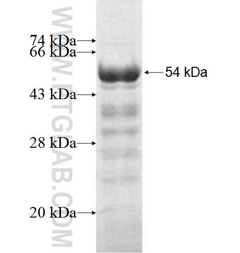 SULT2B1 fusion protein Ag3838 SDS-PAGE