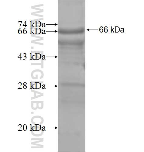 TMPRSS2 fusion protein Ag6452 SDS-PAGE