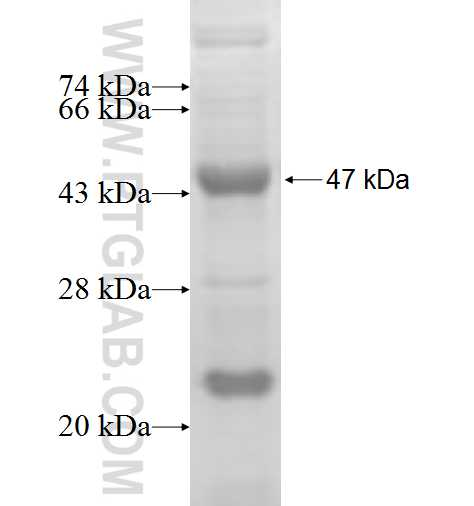ACK1 fusion protein Ag5419 SDS-PAGE