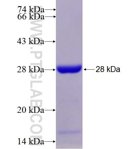 TSG101 fusion protein Ag28569 SDS-PAGE