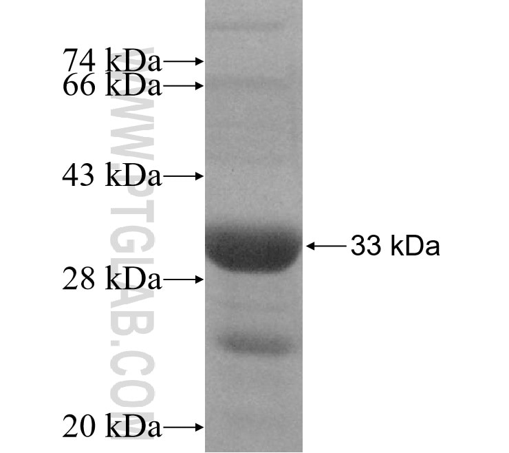 TSG101 fusion protein Ag5920 SDS-PAGE