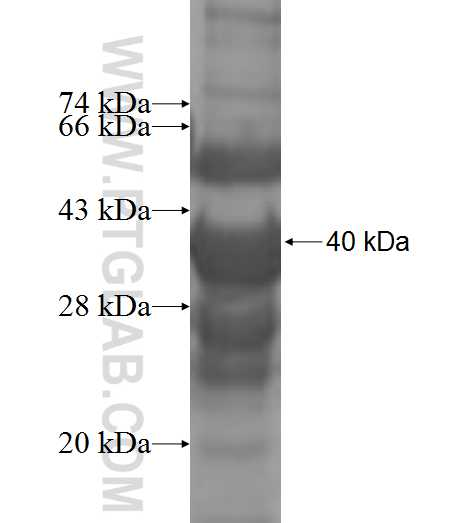 UPK3B fusion protein Ag8428 SDS-PAGE