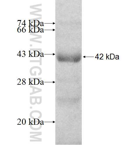 VARS2 fusion protein Ag8457 SDS-PAGE