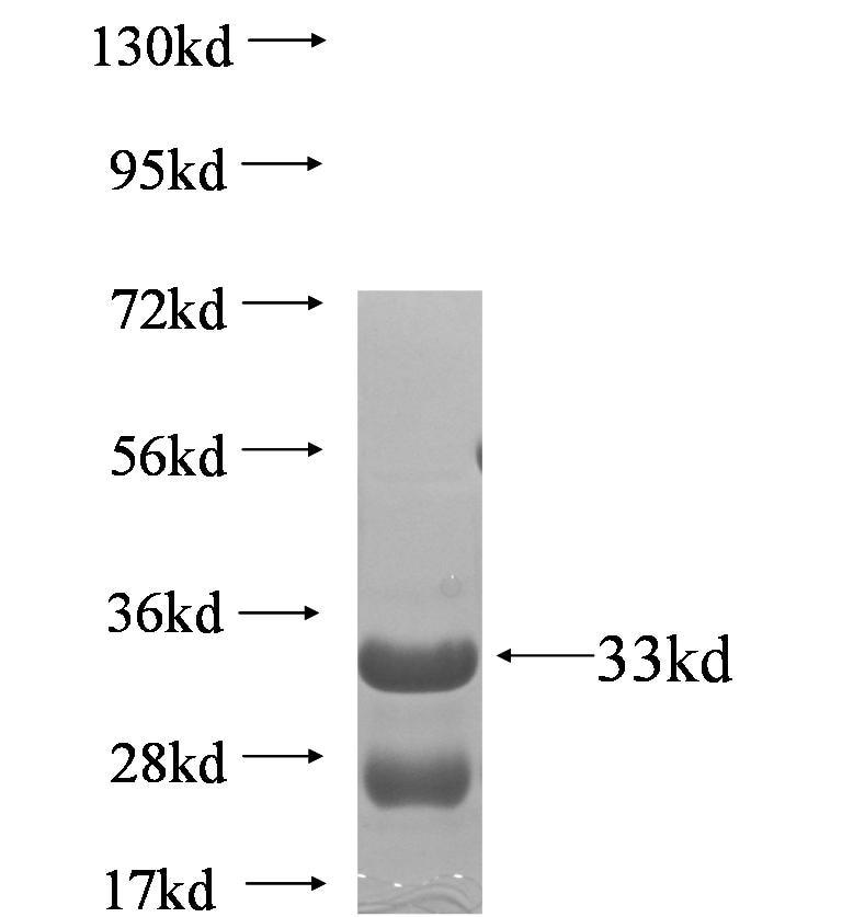 ZHX1 Fusion Protein Ag5580